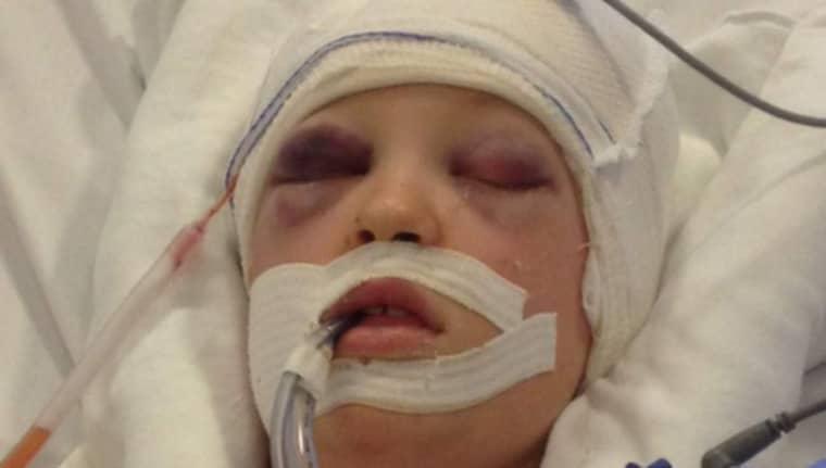 Alice, 11, drabbades av kraftiga skallskador och flera frakturer. Foto: Privat