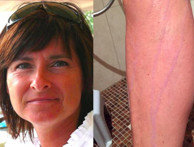 Maria fick lila ben – av tajts från Indiska