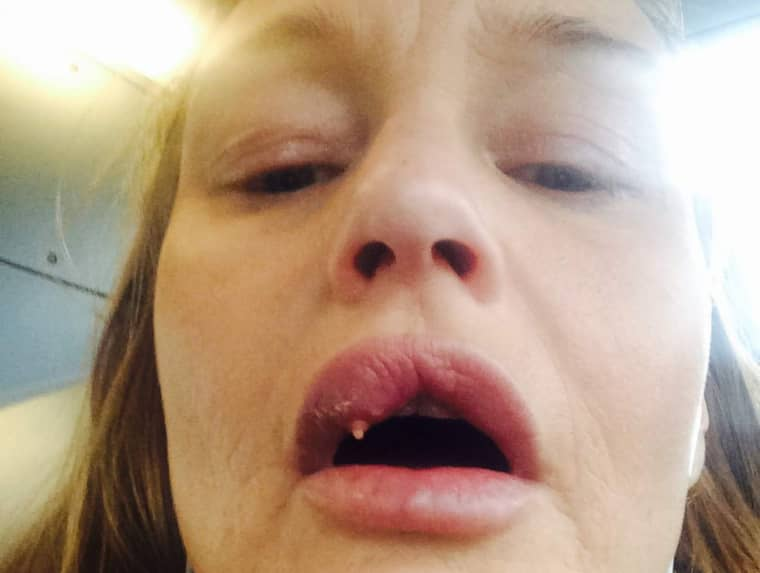 """""""Läpparna sprack när jag var på Odenplan. Det var hemskt"""", berättar Jeanett Ryding. Foto: Privat"""