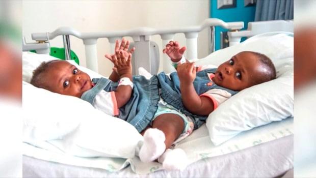 Siamesiska tvillingarna separerade efter 18 timmars operation