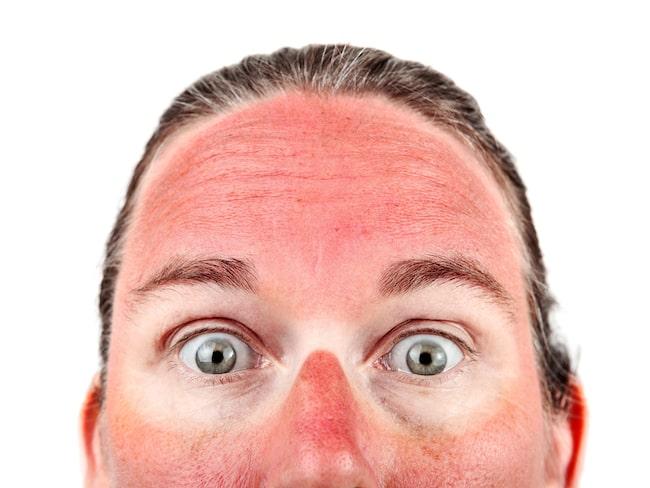 Om du bränt dig i ansiktet kan det vara klokt att låta ansiktet vila från ansiktskrämer som är parfymerade, eller smink för att låta huden vila.