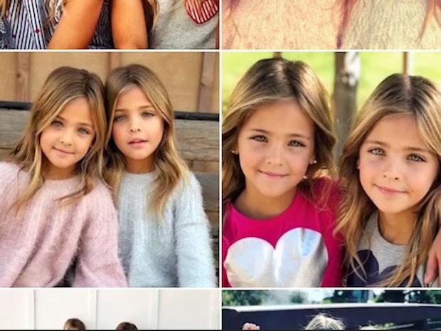 """""""Världens vackraste tvillingar"""" blev stjärnor över en natt –så ser de ut i dag"""