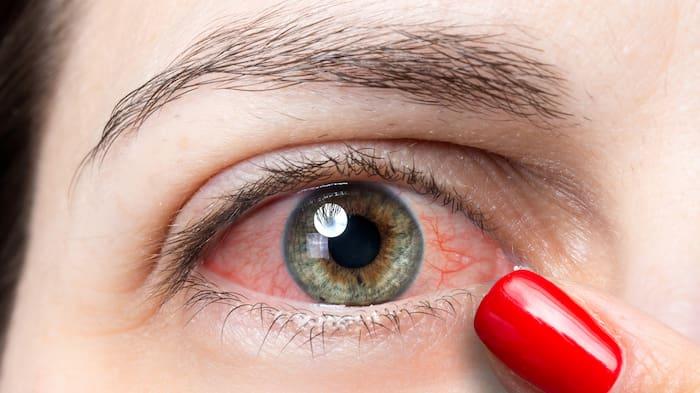blödning i ögat och huvudvärk