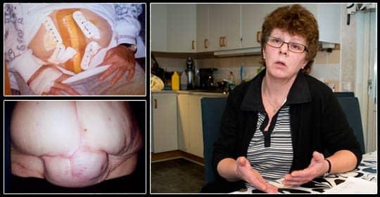 """Ann-Kristin känner sig """"överkörd"""" efter sjukvårdens bemötande efter att hennes mage sprack. Bilden nere till vänster visar hur hennes mage ser ut efter operationen. Vill hon få bukplastik för sina skador måste hon bekosta det själv. Foto: Rickard Nilsson"""