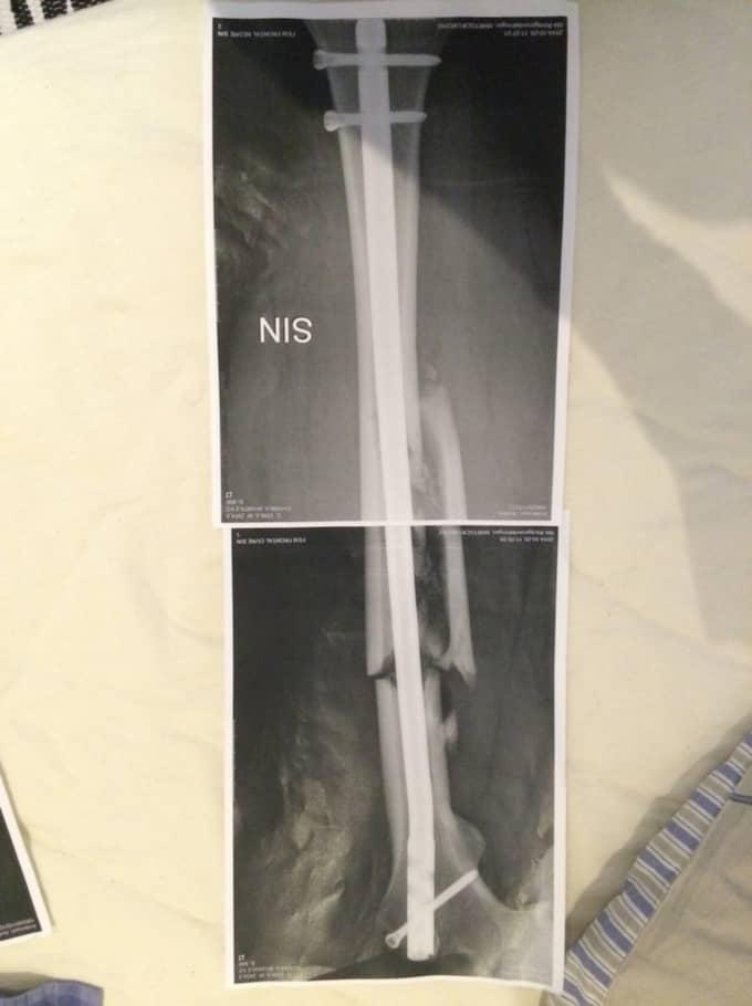 Lårbenet knäcktes rakt av och läkarna tvingades trycka ner en halv meter lång märgspik som nu håller ihop det skadade benet. Foto: Privat