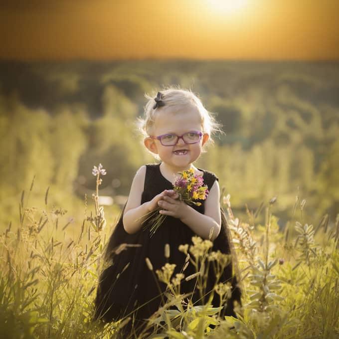 Minea föddes med det ovanliga missbildningssyndromet Aperts syndrom. Foto: Memories By Julia
