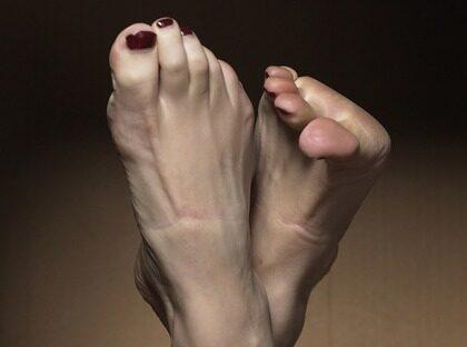 kalla fötter betyder
