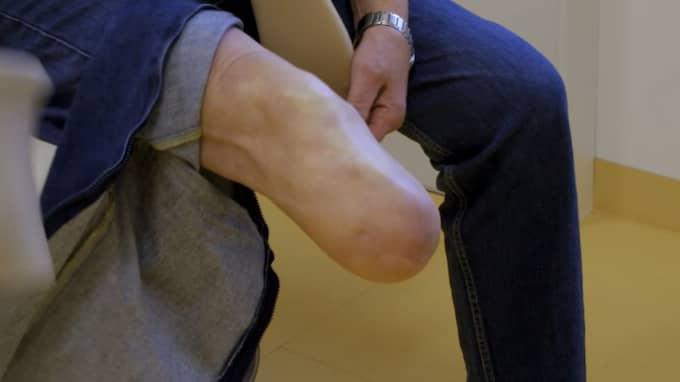 """""""Jag mår oförskämt bra, har slutat äta godis och är ute och går rätt mycket på dagarna"""" säger Krister Broman drygt fem år efter amputationen av benet. Foto: TV3"""