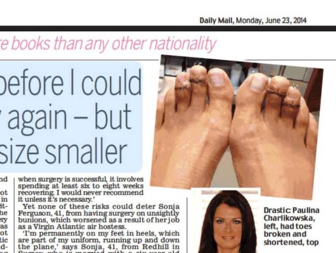 Paulina Charlikowska, 30, berättar i den brittiska tidningen Daily Mail hur hon sparade ihop 50 000 kronor för att korta sina tår. Foto: Daily Mail