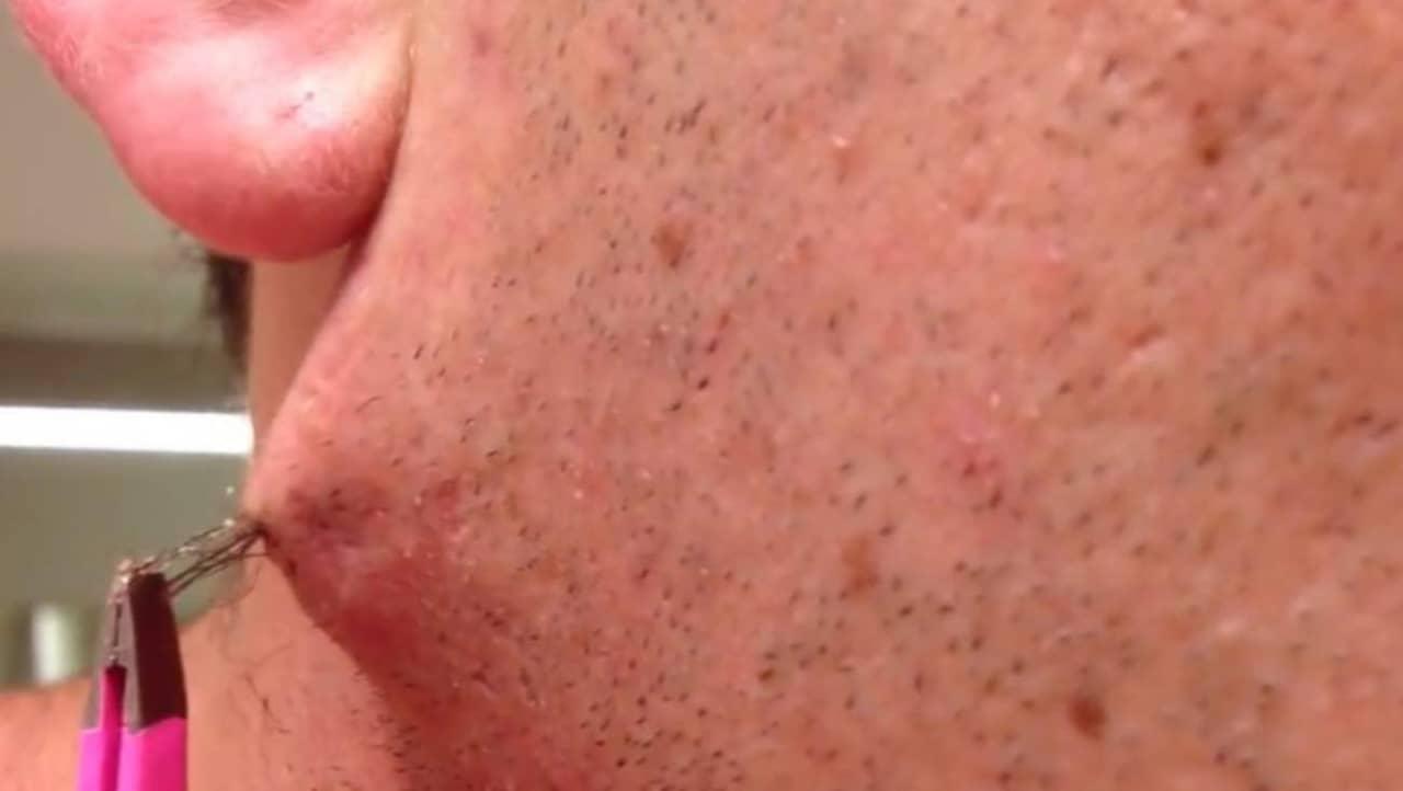 hår växer under huden
