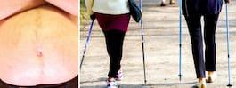 Här får fler lov att  opereras för fetma