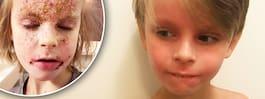 Alexander, 7, ville inte gå till skolan med eksemen