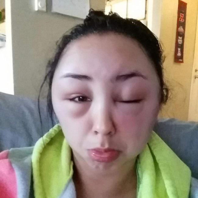 allergisk reaktion hårfärg vad göra