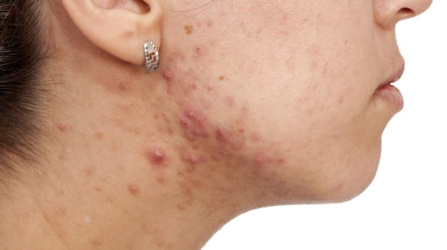 acne behandling antibiotika