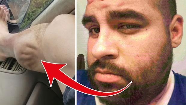 Något rör sig under huden – då tar han upp kameran