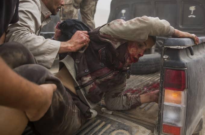 Den unge pojken är täckt av blod efter en granatexplosion. Han lastas på en flakbil för att köras till sjukhus efter att ha blivit skjuten i halsen. Foto: Niclas Hammarström