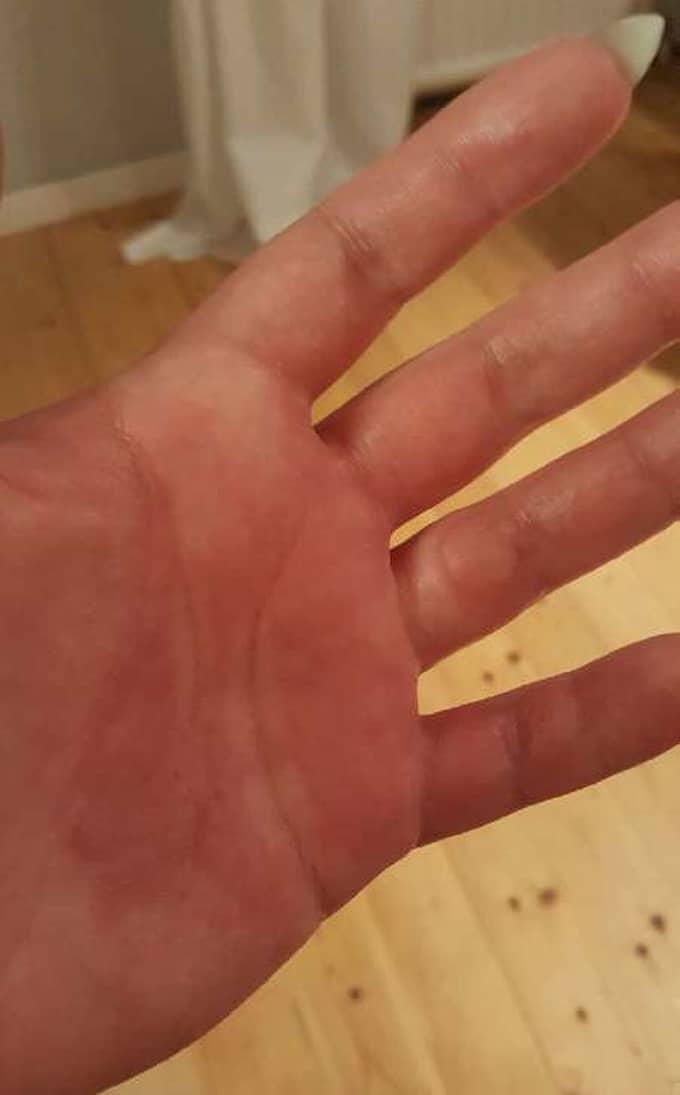 """""""Jag tvättade inte händerna ordentligt. Det var väldigt dumt gjort"""", säger Emelie. Det var när hon solade solarium som växtsaften reagerade. Foto: Privat"""