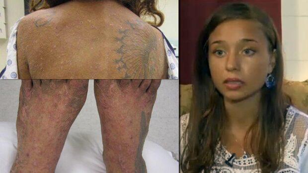 Lisa, 25, visar upp kroppen - efter en månad i skogen