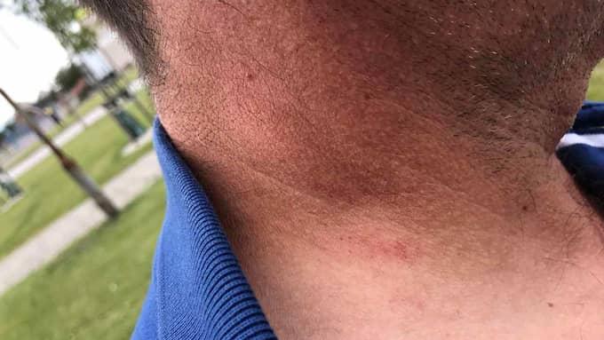 – Efter detta känner jag mig rädd, säger Zoltan, som har märken på halsen efter strypgreppet. Foto: Privat