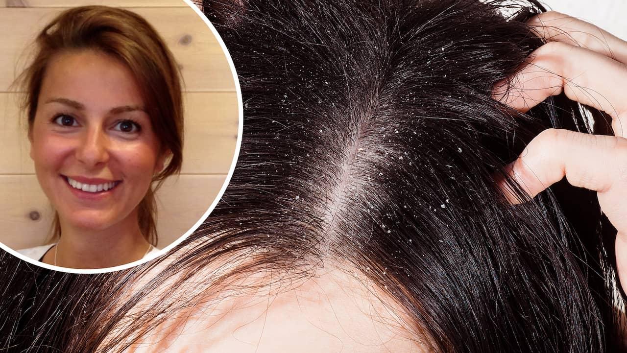 behandling mot torr hårbotten
