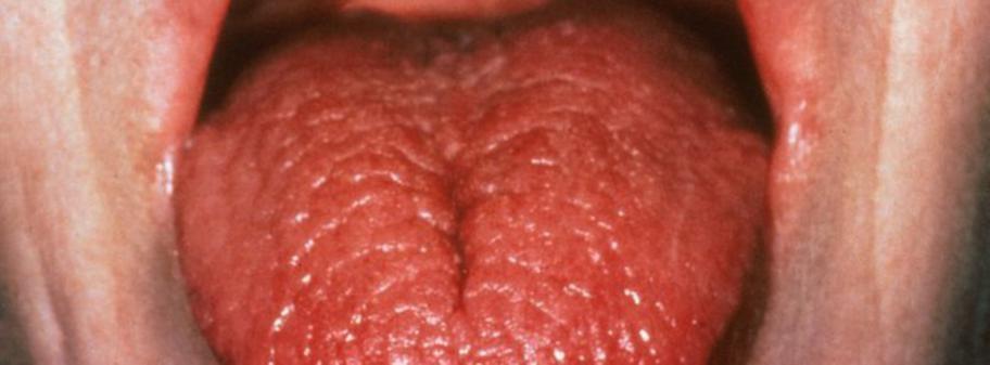 vitaminbrist symptom tunga