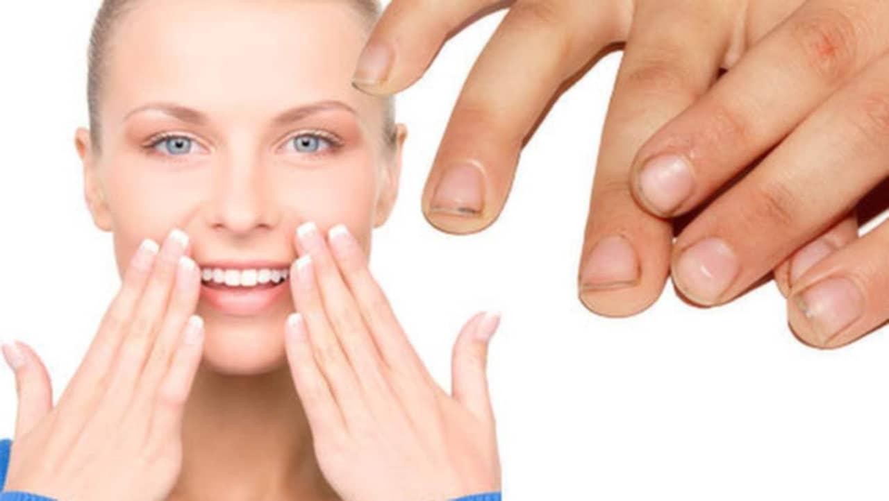 buckliga naglar orsak