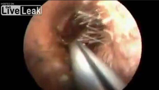 Rysliga fyndet när mannen rensar örat