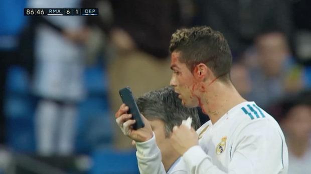Ronaldos blodiga bilder