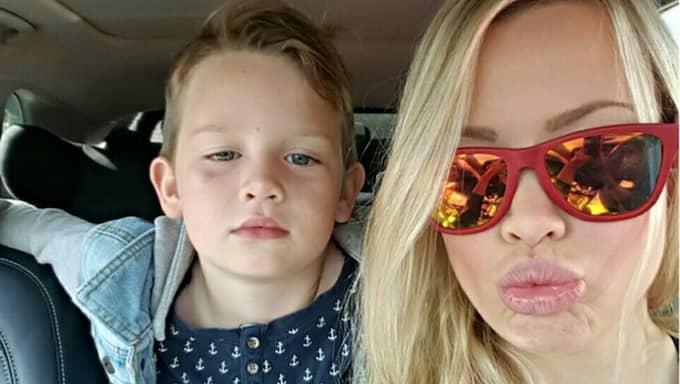 Sonen Edvin, 6, ska bli storebror i juli. Helst vill han ha en lillasyster. Foto: Privat