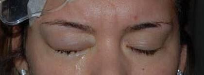 Efter laseroperationen försämrades synen och Lisa Svensson fick svåra smärtor.