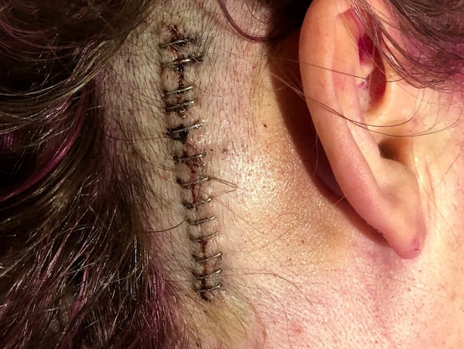 Sedan dess har hon opererats flera gånger.