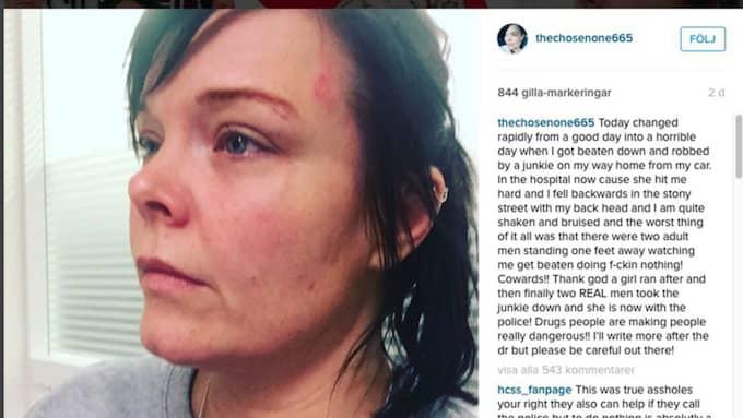 """Efter att hon överfölls och misshandlades i Helsingborg skrev Anette Olzon om det på Instagram. """"Det är bra om en sån här händelse kan få folk att bli mer vaksamma"""", säger hon."""