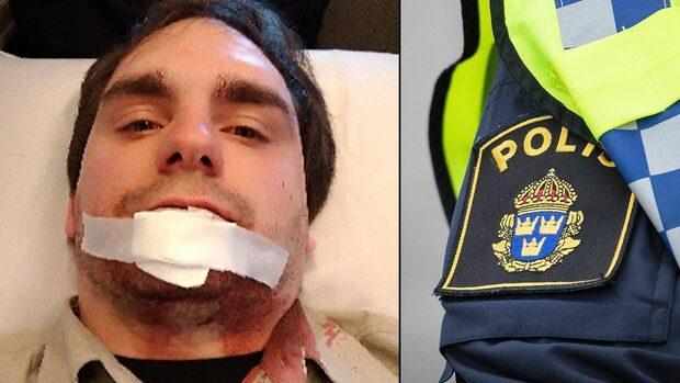 Rånarens otäcka attack –bet väktaren i ansiktet