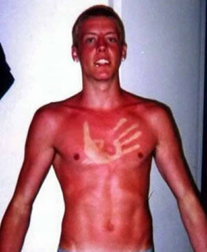Om man bränt sig i solen