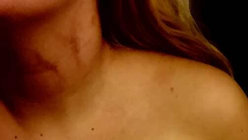 """""""Jag var höggravid under en period som han slog mig"""", säger Sandra. Foto: Privat"""