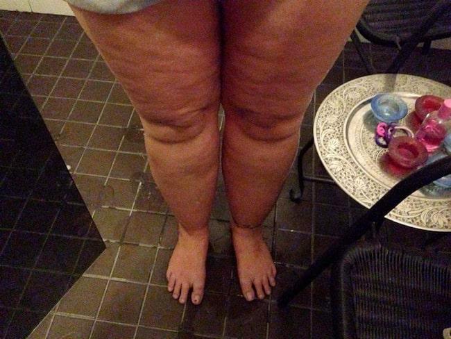 Så här såg Lenes ben ut när hon diagnosticerades med lipödem.