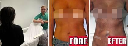 bröstförstoring eget fett pris