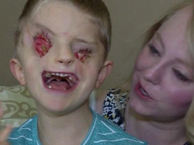Pojken föddes med extremt sällsynt sjukdom