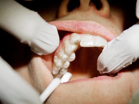 Denna behandling kan göra att du slipper dyra och smärtsamma tandläkarbesök.