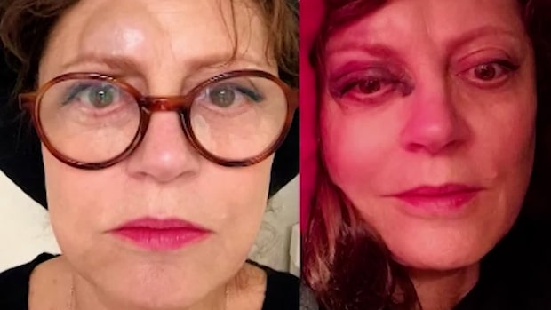 Susan Sarandons blodiga skada