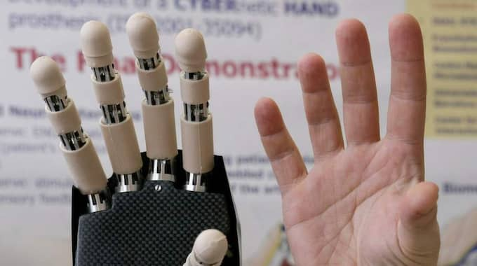 Med ny teknik kan även en mänsklig hand kopieras. Foto: Fabio Muzzi