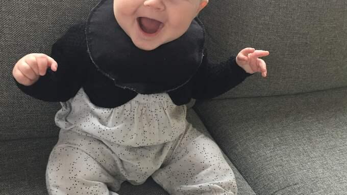 Lilla Naomi föddes med en missbildning i båda tummarna.