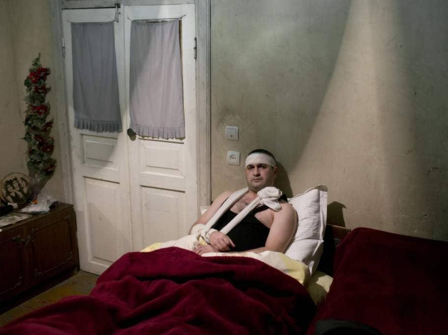 Rummet där Mher Sahakyam gömmer sig i utkanterna av Armeniens huvudstad Jerevan är kallt och luktar svagt av mögel och svett. Av rädsla för repressalier vågar han inte kontakta polisen eller ta sig till ett sjukhus. Foto: Johan Persson