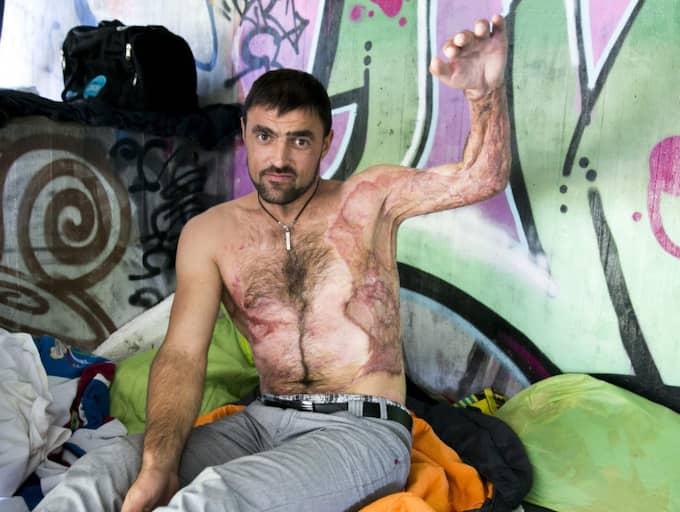 SKADAD FÖR LIVET. En kabel gick sönder och strömmen gick rakt igenom Cornel Onofreis arm. Sedan fattade han eld. Han minns inte hur det gick till, han har fått höra det efterhand från vittnen. Foto: Lennart Rehnman