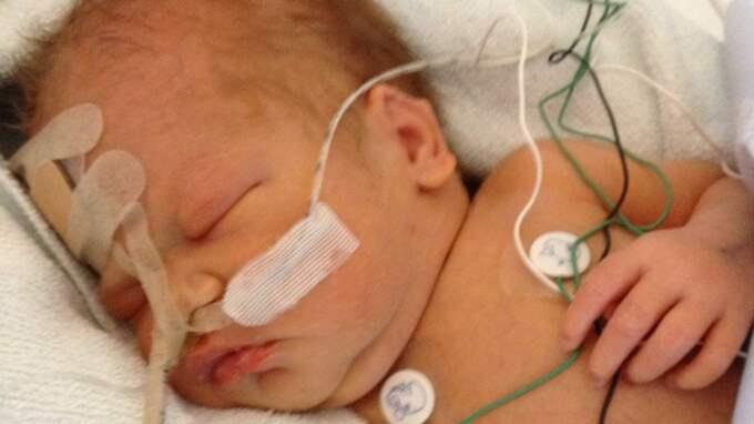 """""""Läkarna har sagt att det var på håret de lyckades rädda Alma. Om de inte hade opererat henne skulle hon inte ha klarat sig"""", säger mamma Jennifer. Foto: Privat"""