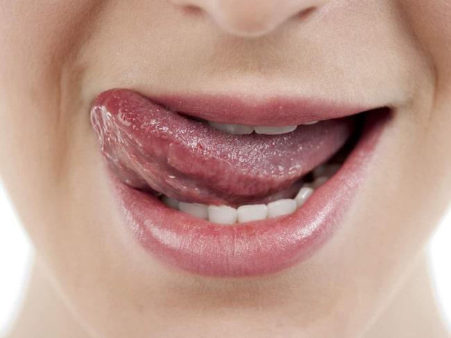 vita blåsor på tungspetsen